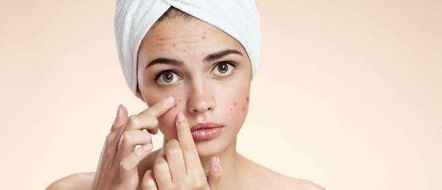 Scrurb for acne