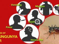 Chikungunya fever Symptoms, Diagnosis, & Treatment