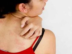 Fungal infections in sweating