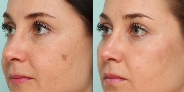 how-to-remove-dark-spots