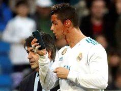 Blood gushes out of Cristiano Ronaldo রক্ত ঝরিয়ে রোনালদোর জয়